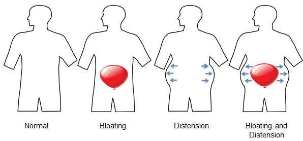 bloating vs distension